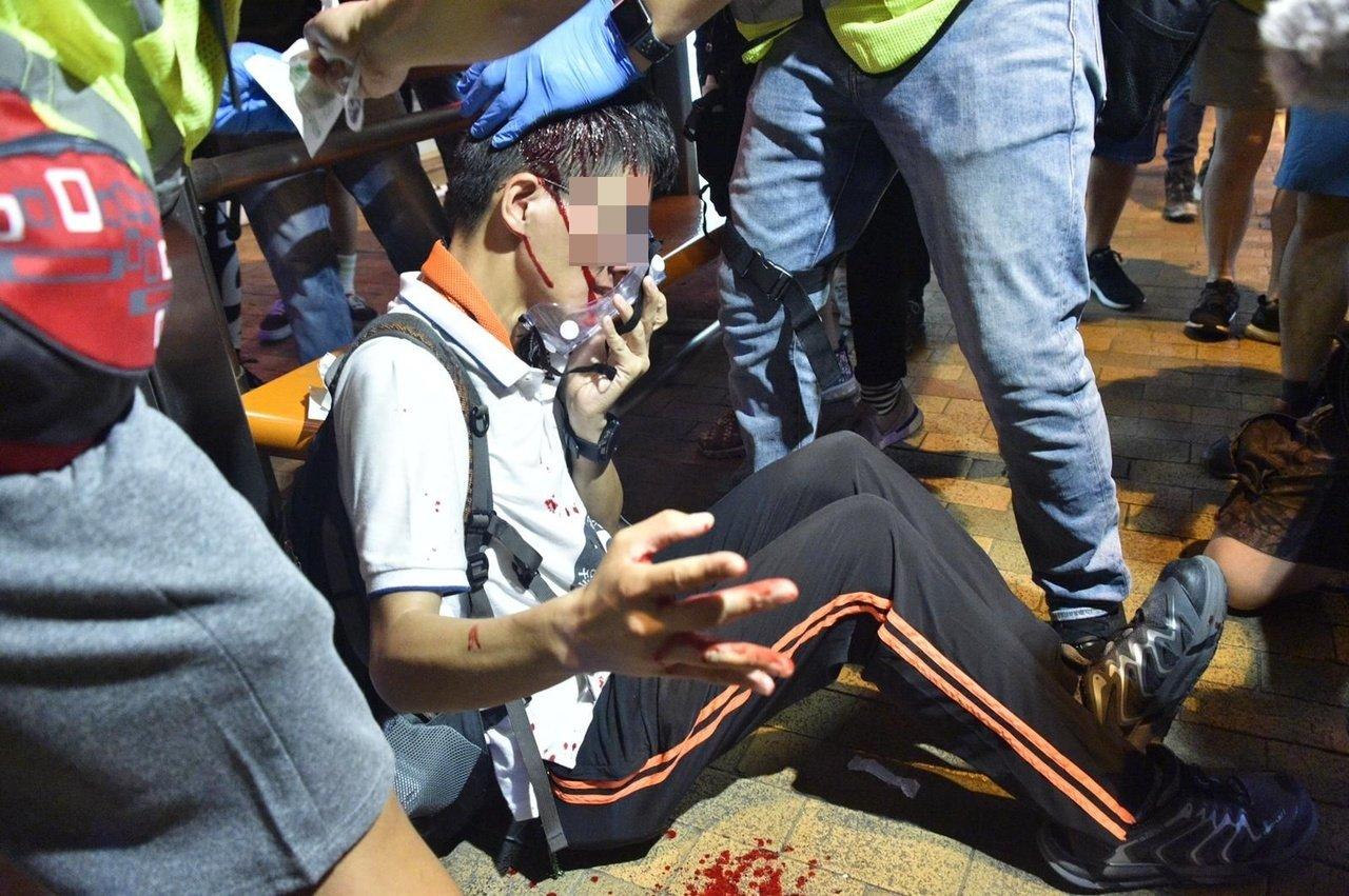 上環衝突游擊混戰 至少16人受傷12人留院